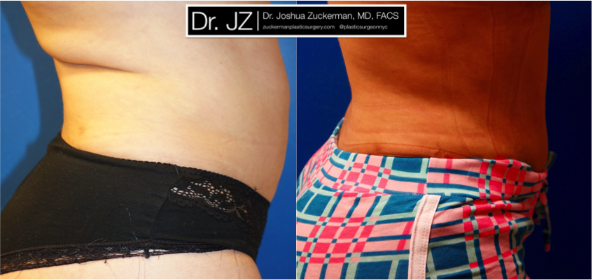 Featured Liposuction Result #3 by Dr. Joshua Zuckerman, Right Profile View