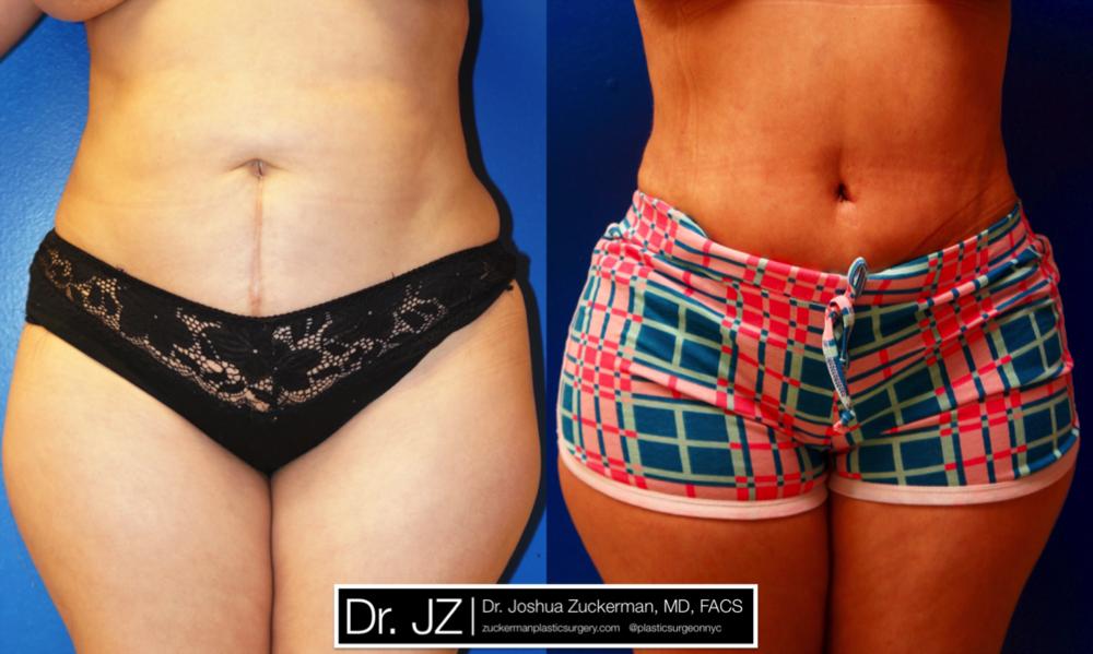 Featured Tummy Tuck Surgery (Abdominoplasty) #4 by Dr. Joshua Zuckerman, Frontal View