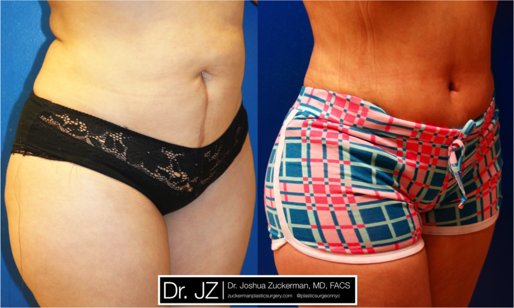 Featured Tummy Tuck Surgery (Abdominoplasty) #4 by Dr. Joshua Zuckerman, Right Oblique View