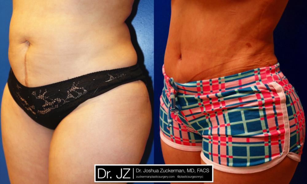 Featured Tummy Tuck Surgery (Abdominoplasty) #4 by Dr. Joshua Zuckerman, Left Oblique View