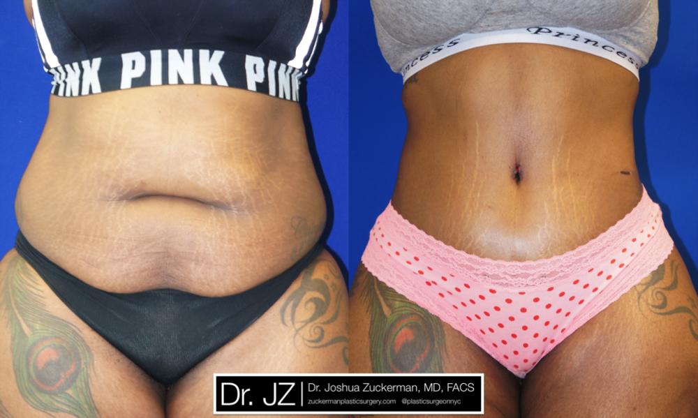 Featured Tummy Tuck Surgery (Abdominoplasty) #5 by Dr. Joshua Zuckerman, Frontal View