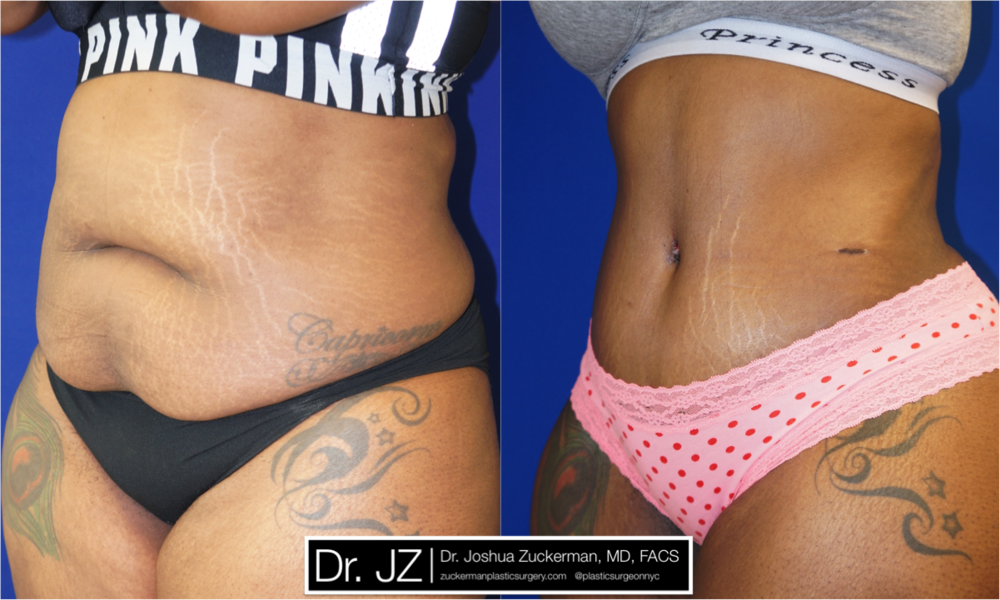Featured Tummy Tuck Surgery (Abdominoplasty) by Dr. Joshua Zuckerman, Left Oblique View