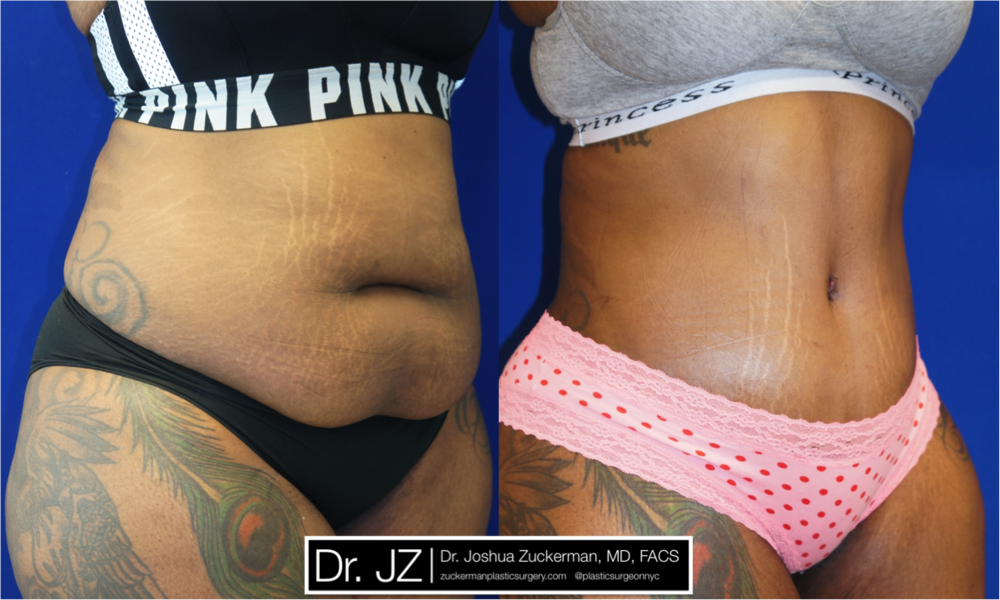 Featured Tummy Tuck Surgery (Abdominoplasty) #5 by Dr. Joshua Zuckerman, Right Oblique View