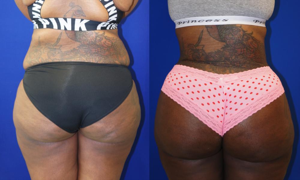 Featured Buttock Augmentation (Brazilian Butt Lift) #2 by Dr. Joshua Zuckerman, MD, FACS, Posterior View
