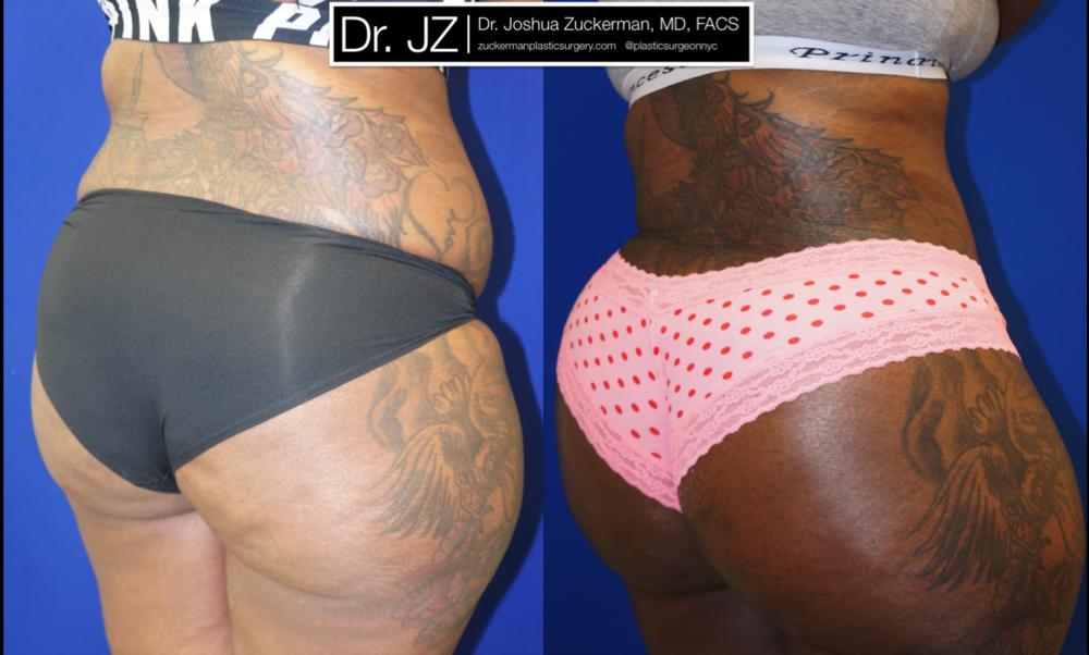 Featured Buttock Augmentation (Brazilian Butt Lift) #2 by Dr. Joshua Zuckerman, MD, FACS, Right Oblique Posterior View