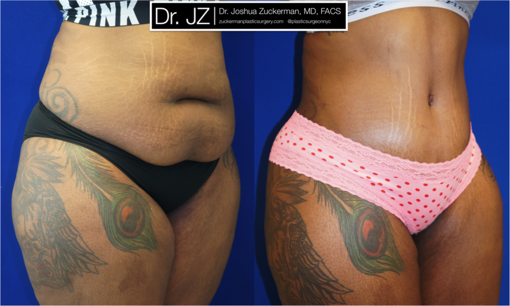 Featured Buttock Augmentation (Brazilian Butt Lift) #2 by Dr. Joshua Zuckerman, MD, FACS, Right Oblique Anterior (Frontal) View