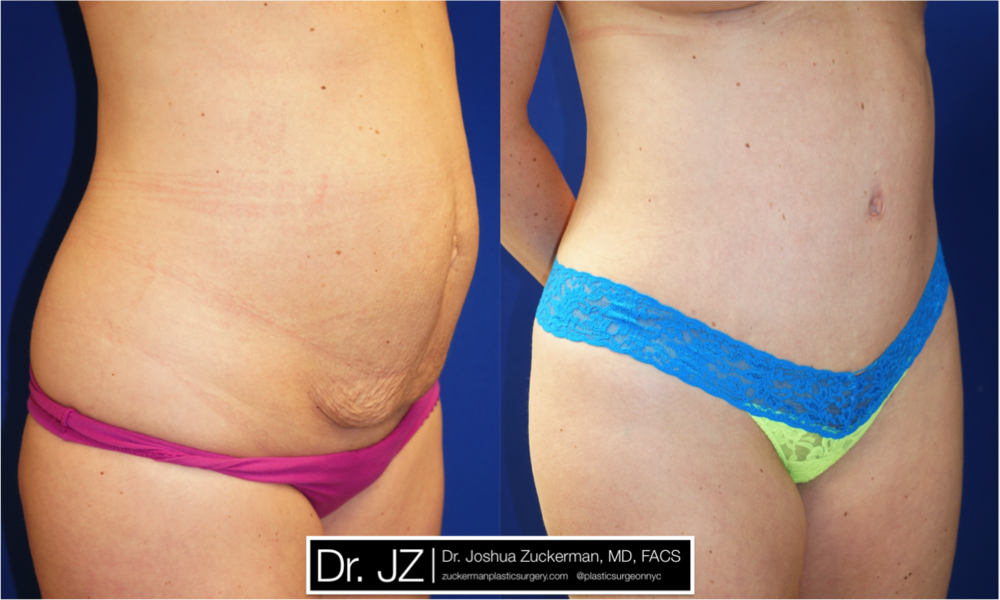 Featured Tummy Tuck Surgery (Abdominoplasty) by Dr. Joshua Zuckerman, Right Oblique View