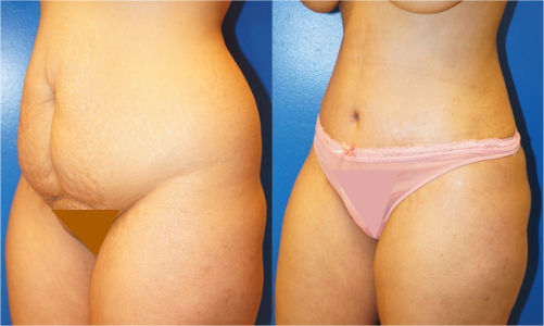 A before and after tummy tuck (abdominoplasty) cosmetic plastic surgery result by Dr. Joshua D. Zuckerman, MD, FACS.