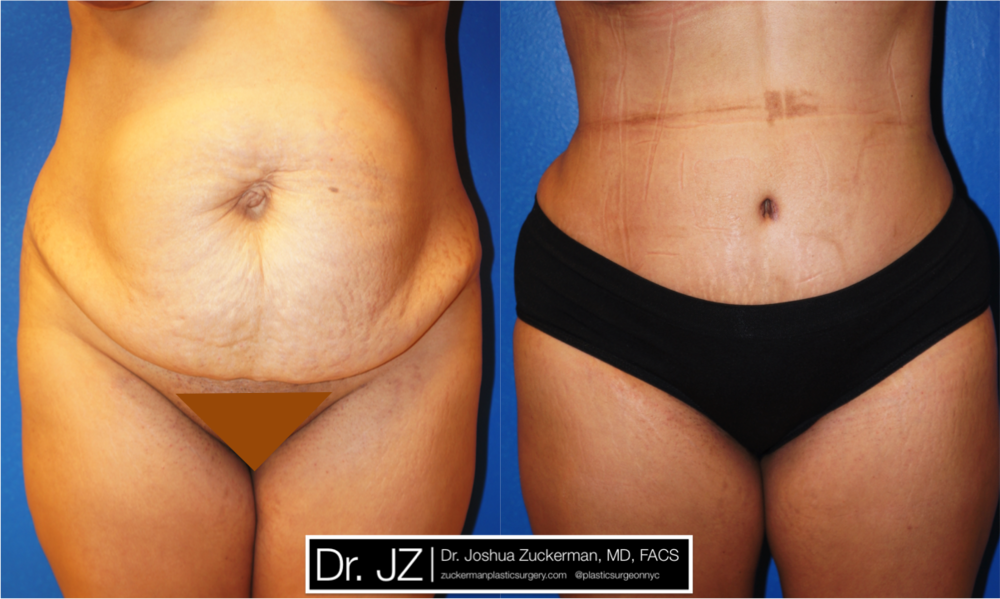 Featured Tummy Tuck Surgery (Abdominoplasty) #7 by Dr. Joshua Zuckerman, Frontal View