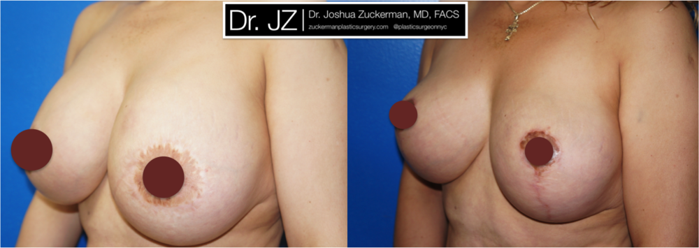 Featured Breast Lift (Mastopexy) by Dr. Joshua Zuckerman, Left Oblique View