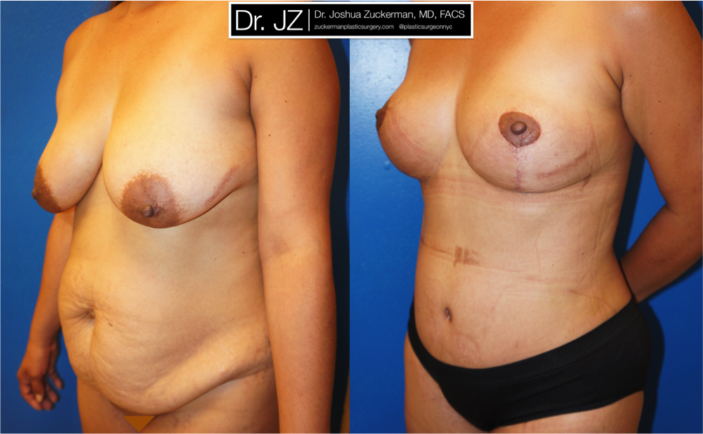 Featured Mommy Makeover Surgery #2 by Dr. Joshua Zuckerman, Left Oblique View