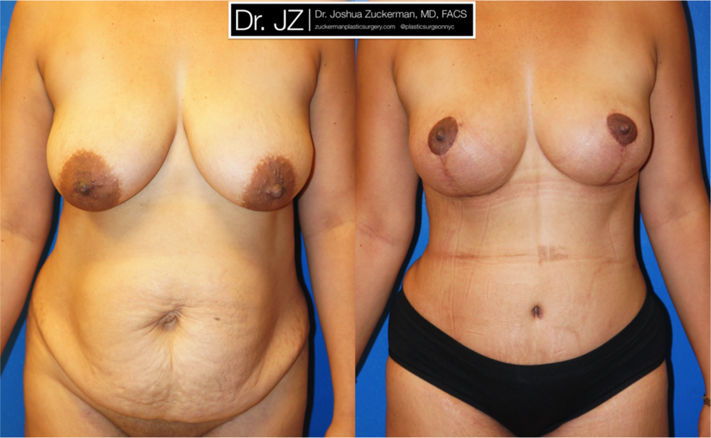 Featured Mommy Makeover Surgery by Dr. Joshua Zuckerman, Frontal View
