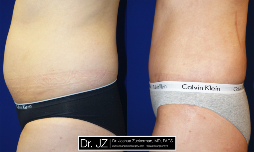 Featured Tummy Tuck Surgery (Abdominoplasty) #7 by Dr. Joshua Zuckerman, Left Profile View