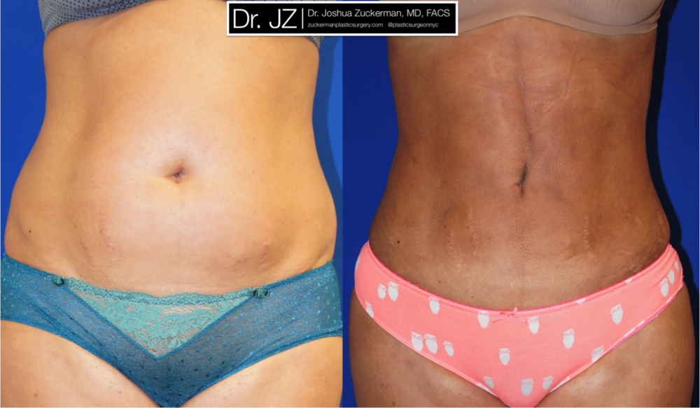 Featured Liposuction Result by Dr. Joshua Zuckerman, Frontal View