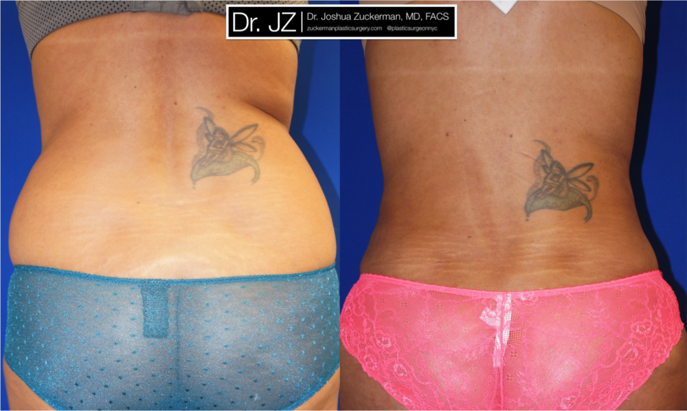 Featured Liposuction Result by Dr. Joshua Zuckerman, Posterior (Back) View