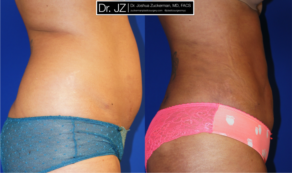 Featured Liposuction Result by Dr. Joshua Zuckerman, Right Profile View
