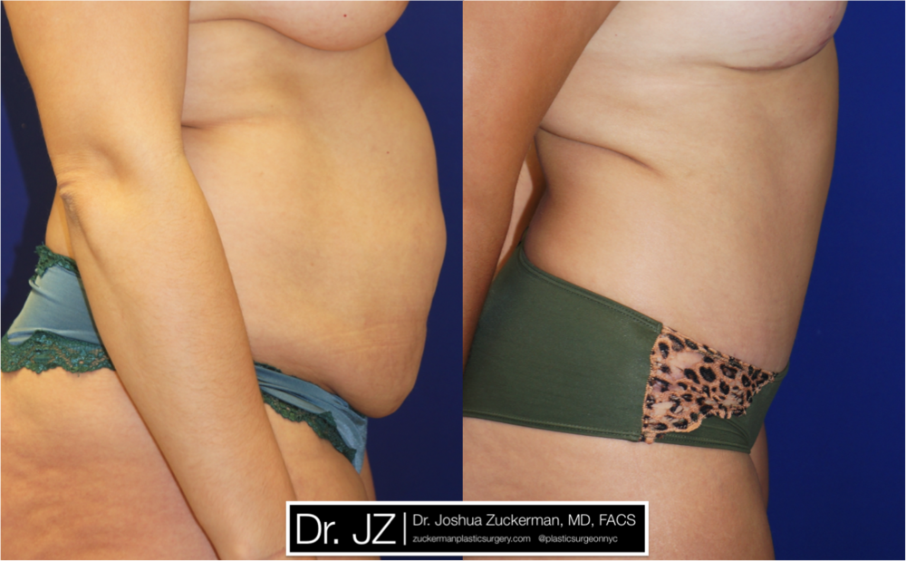 Featured Tummy Tuck Surgery (Abdominoplasty) #7 by Dr. Joshua Zuckerman, Right Profile View