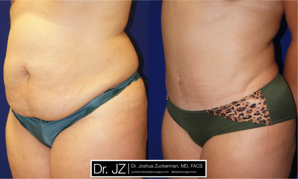 Featured Tummy Tuck Surgery (Abdominoplasty) #7 by Dr. Joshua Zuckerman, Left Oblique View