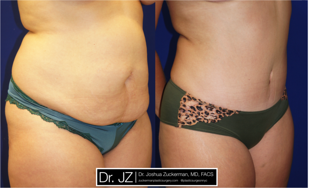 Featured Tummy Tuck Surgery (Abdominoplasty) #7 by Dr. Joshua Zuckerman, Right Oblique View
