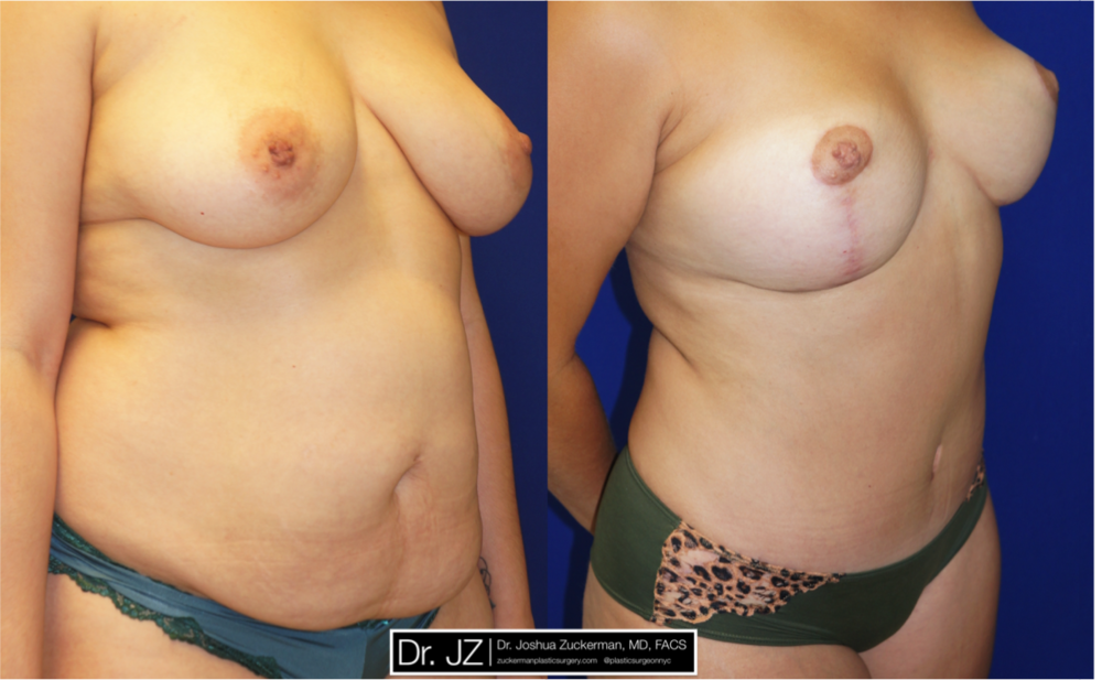 Featured Mommy Makeover Surgery by Dr. Joshua Zuckerman, Right Oblique View