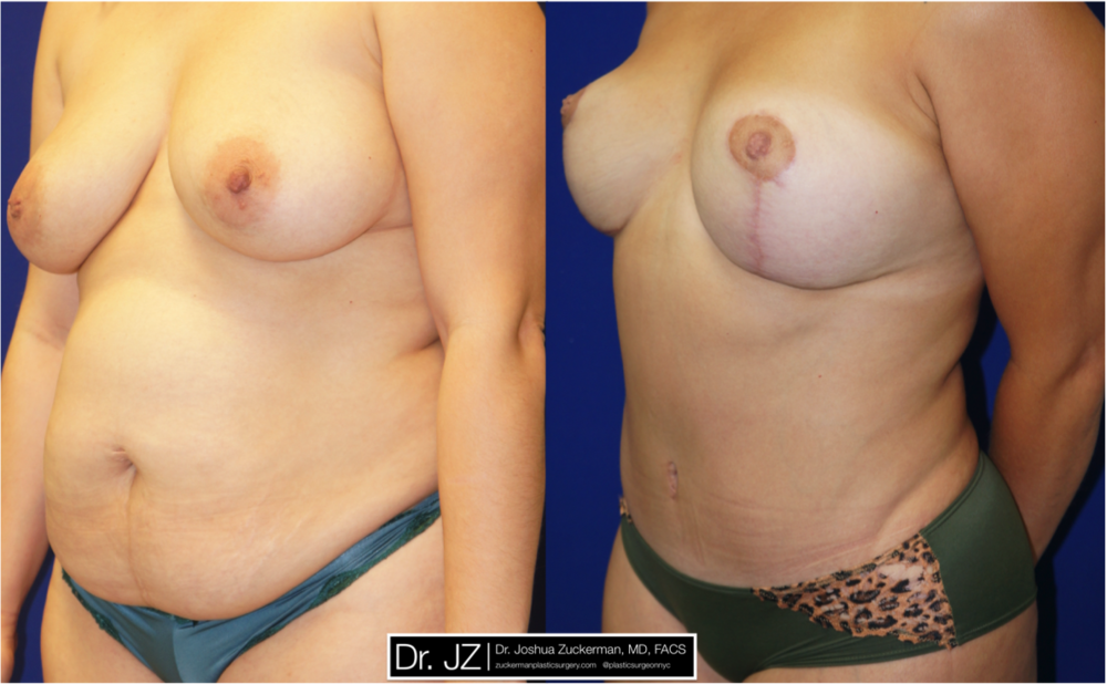 Featured Mommy Makeover Surgery by Dr. Joshua Zuckerman, Left Oblique View
