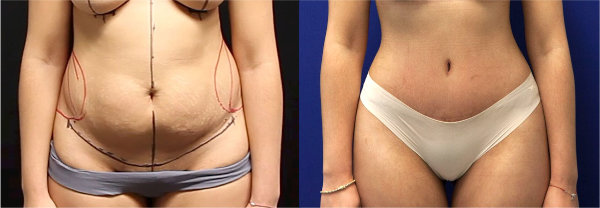A tummy tuck patient of Dr. Zuckerman's pictured before and three months after her plastic surgery.