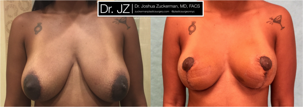 A before and after breast lift outcome by Dr. Zuckerman 1yr post-op. For more of Dr. Zuckerman's mastopexy before & after images, visit the full Before & After Page.