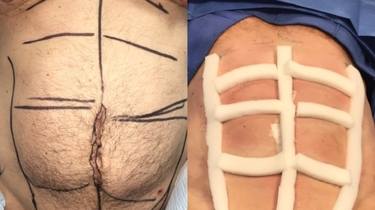 An abdominal etching patient of Dr. Zuckerman's before and immediately after his plastic surgery procedure with post-operative compression foam.