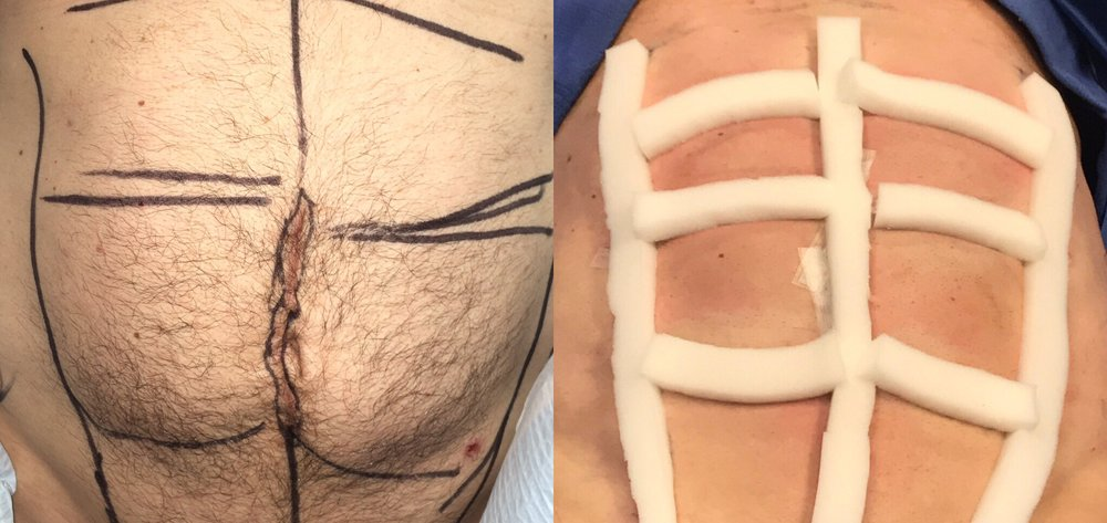 An abdominal etching patient of Dr. Zuckerman's pictured before and immediately after his plastic surgery procedure. Patient is wearing post-op compression foam in the after image.