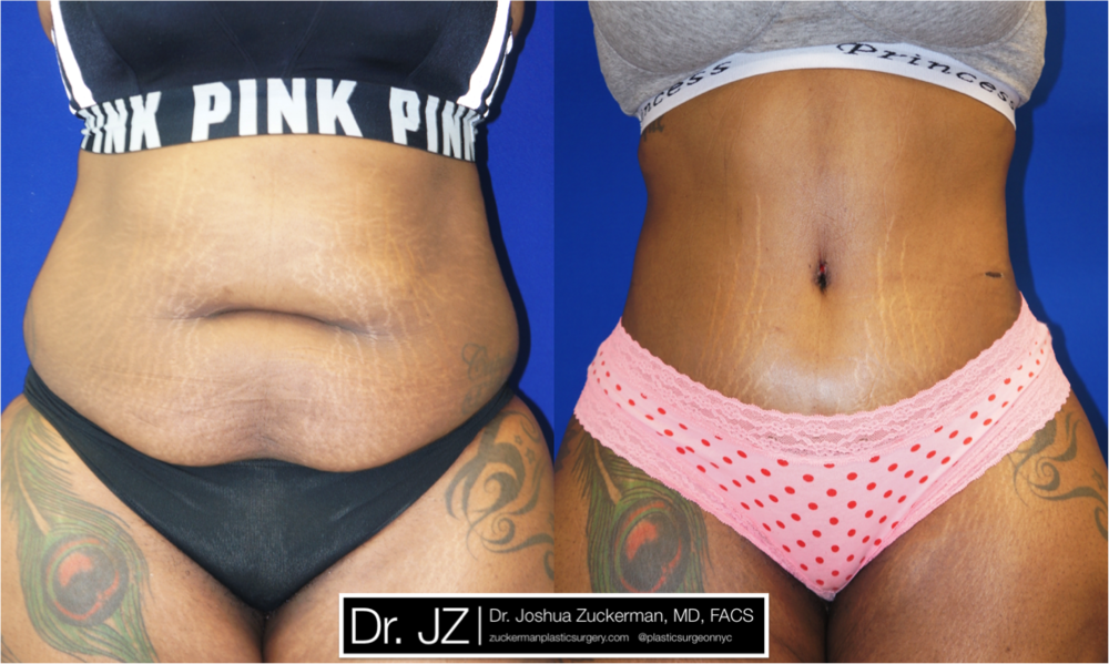 A before and after tummy tuck, or abdominoplasty, plastic surgical result by Dr. Zuckerman