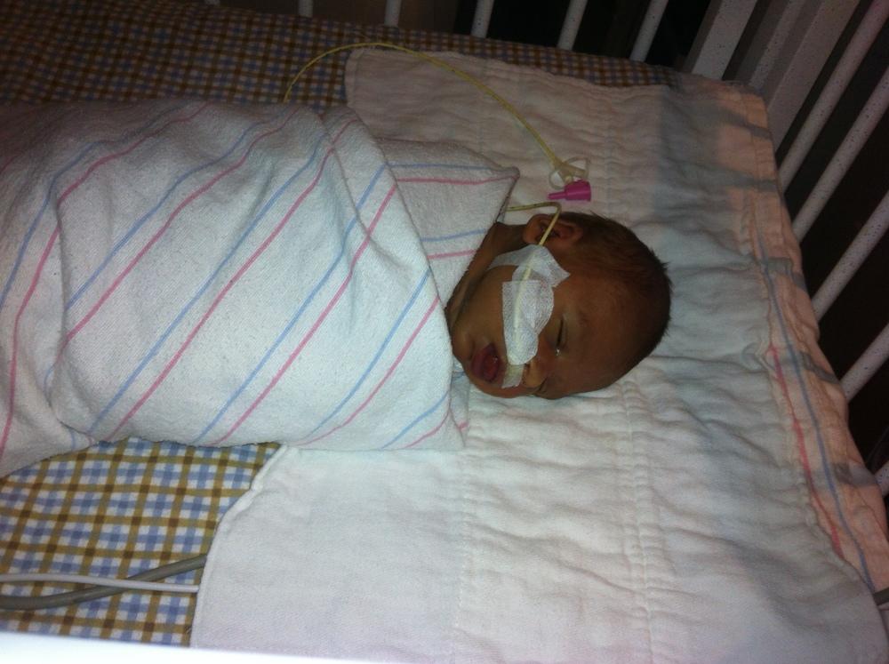 Beckwith Wiedemann Syndrome feeding tube NICU macroglossia mybwsbab.com