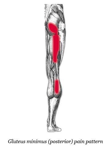 Glute minimus posterior pain pattern.JPG