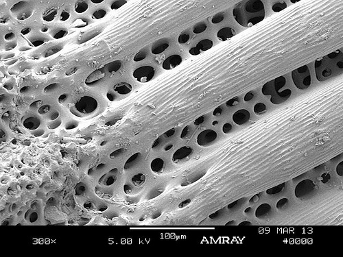 Spine Structure Photograph