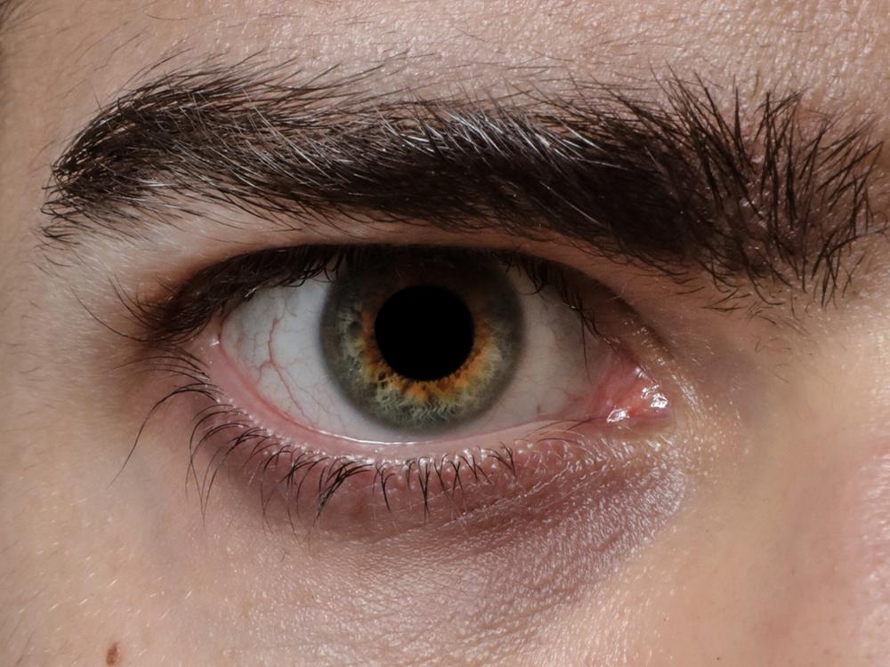 Andrews-Eye.png