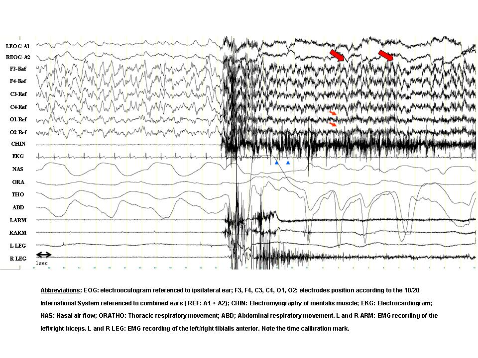 In this example, the first half of the window shows normal Stage N3 delta slow-wave sleep. At about half-way through, there is a sudden change in the EEG brain wave activity, shifting the patient from neurological sleep to a state of wakefulness.