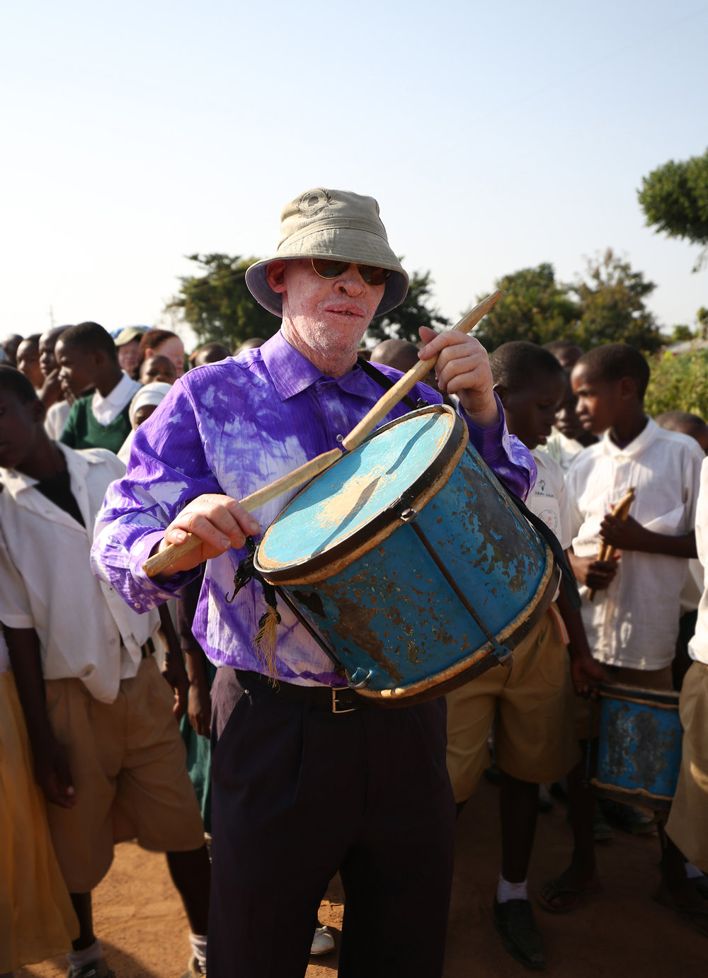 International Albinism Awareness Day. 13th June. People come together to march the streets and raise awareness for their plight. School children from the community sing in support.