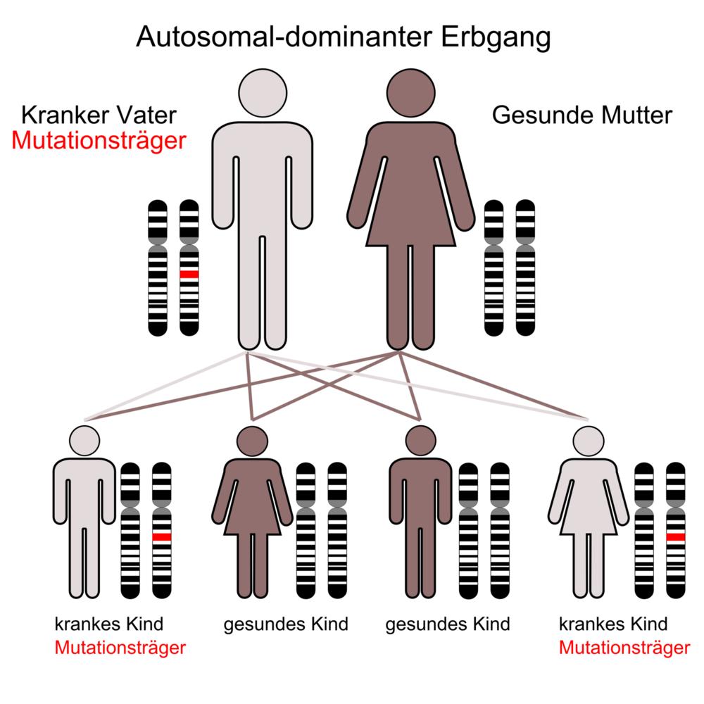 Autosomal-dominanter Erbgang. Rot gekennzeichnet ist die Allele, die die zur Ausprägung einer Krankheit führt. Quelle: Wikipedia Commons by  Armin Kübelbeck