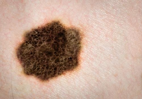 Melanoma, skin cancer, mole.