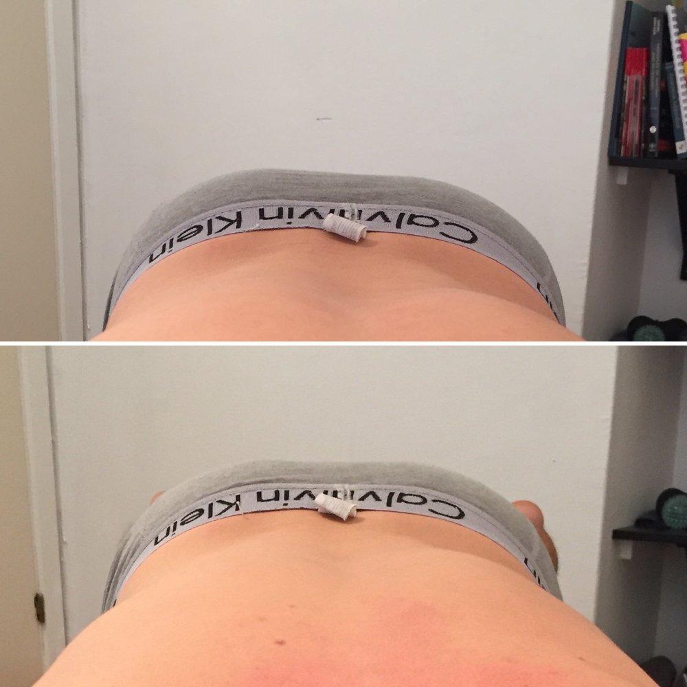 Patienten har godkänt bilden. Översta bilden är före behandling, undre bilden efter.