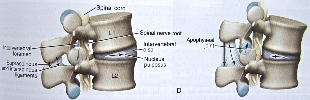 Image 1 : Extension (backbending) | observe the location of the nerves in the spinal cord. When in extension, the disc moves away from the nerves (the root of the pain) and the bones open up creating space for the disc.  Image 2: Flexion (forward bending) the vertebrae push together compressing the disc and sending it towards the nerves potentially leading to pain.