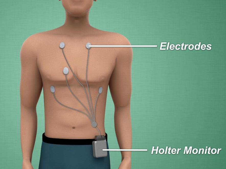 10_HolterMonitor.jpg