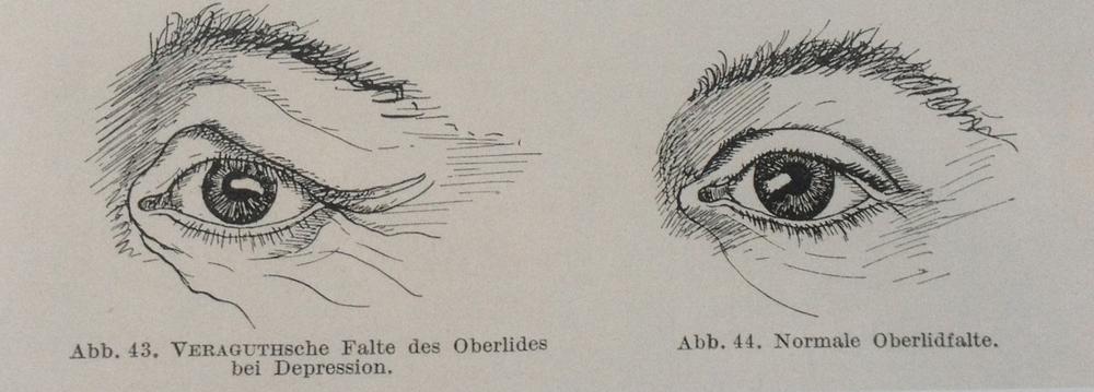 Eugen Bleuler,Lehrbuch der Psychiatrie,1916