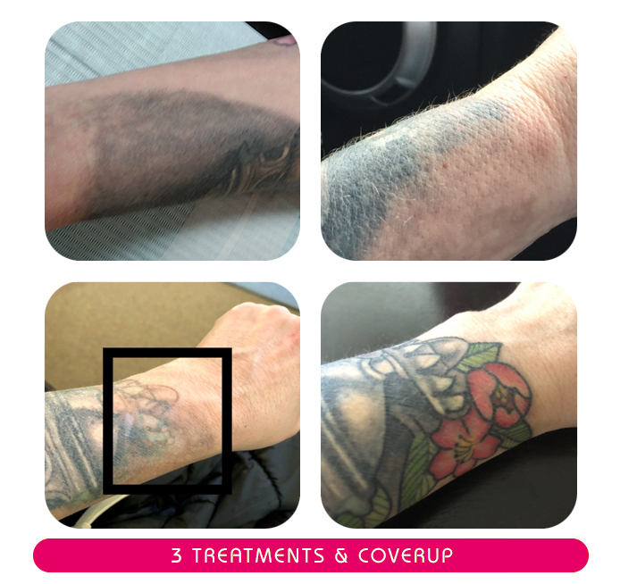 secondskinlaser-3treatments-coverup.jpg