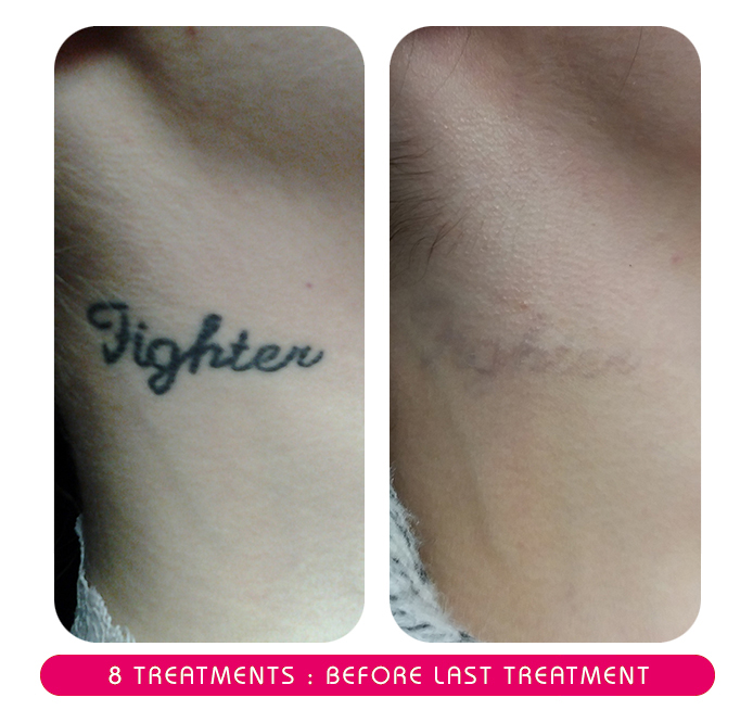 secondskinlaser-8treatments.jpg