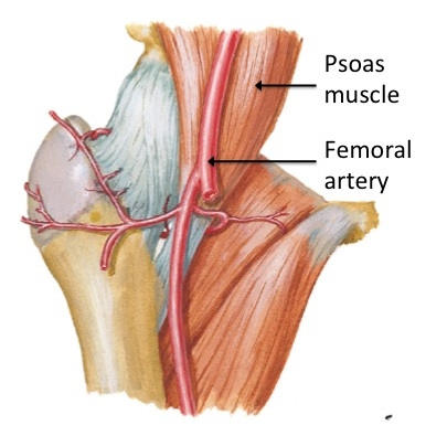Image 3: This is a view of the front of the right hip joint, showing the relationship of the psoas muscle and femoral artery.