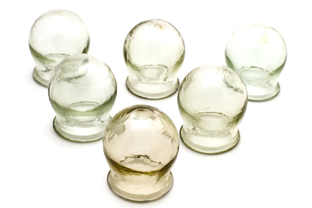 Cupping & Qua-Sa - Another technique used in TCM treatment is cupping and Qua-sa (gwa-sha). Traditionally, cupping is the use of thick-rimmed glass cups vacuumed onto the skin's surface, often on the back of the body. This is used strategically by TCM practitioners to stimulate Qi, however a common after effect is a sense of calm and relaxation. It's also common for cups to leave temporary bruise-like marks, these generally clear after a few days.Qua-sa also stimulates Qi by the use of a china spoon along the Meridian channels across the back and chest.
