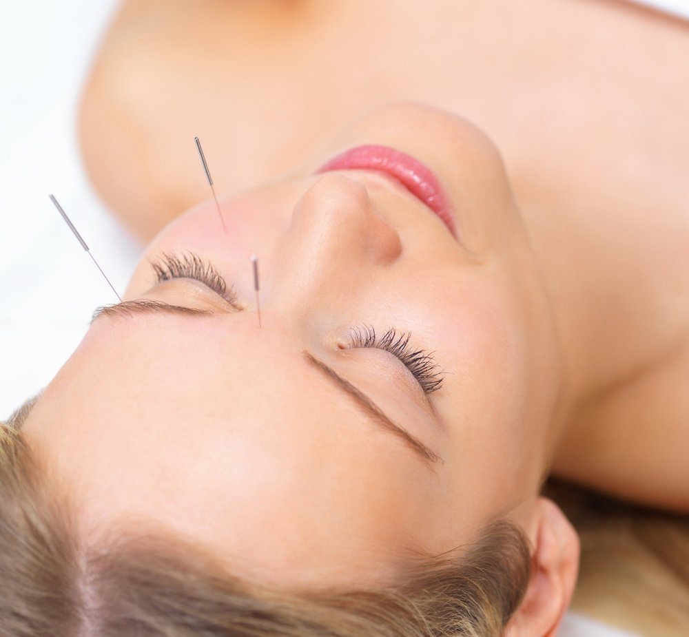 Cosmetic Acupuncture - Drawing on the wisdom of acupuncture, Cosmetic Acupuncture harnesses the body's inherent ability to restore and revitalise.