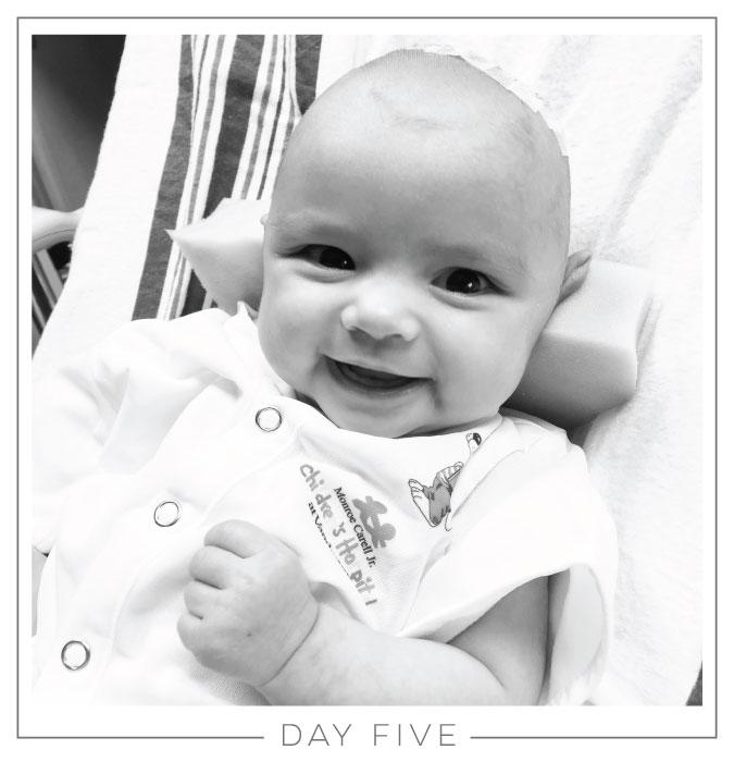 Day Five // Craniosynostosis