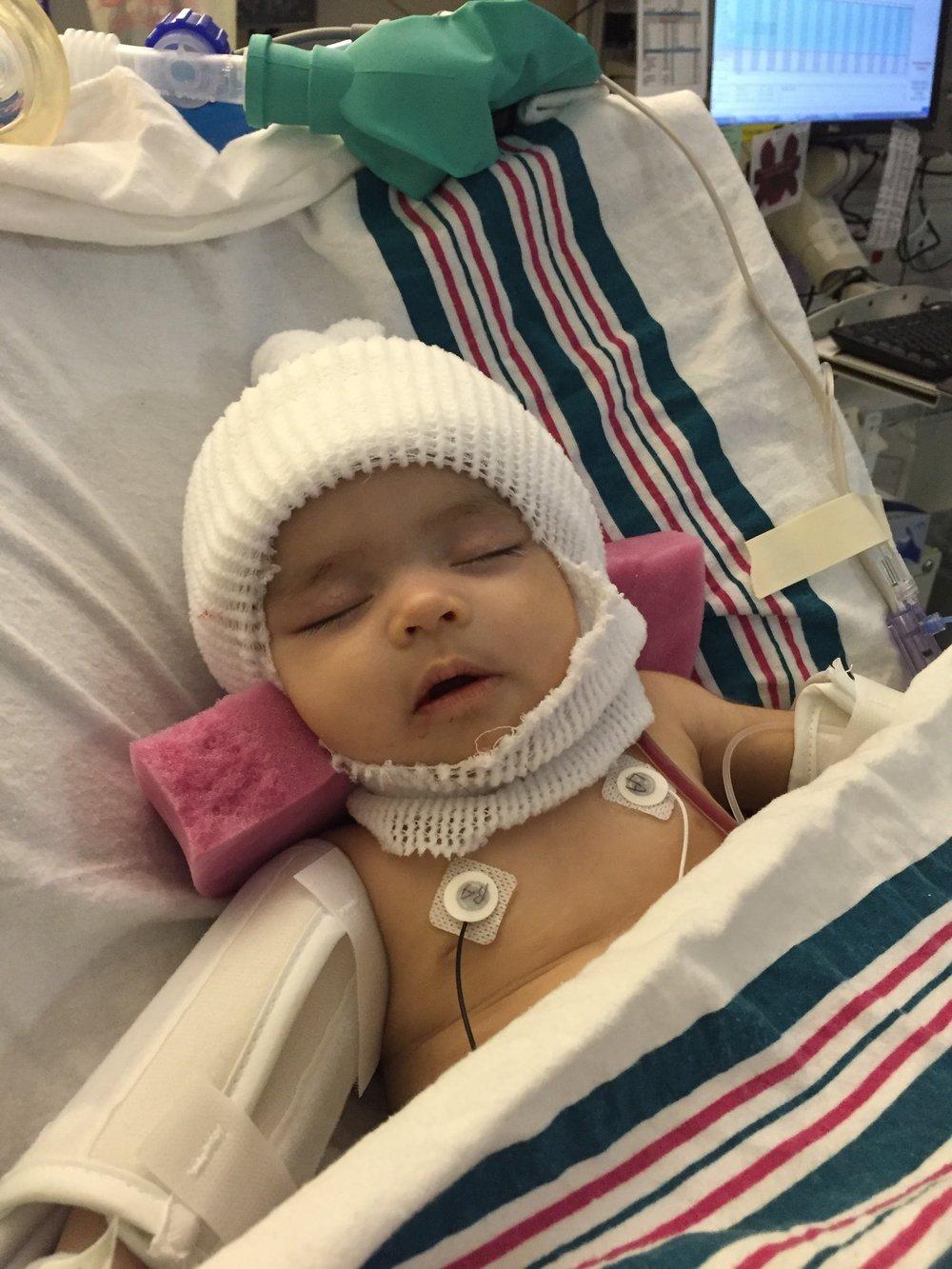 Craniosynostosis Craniofacial Surgery Baby