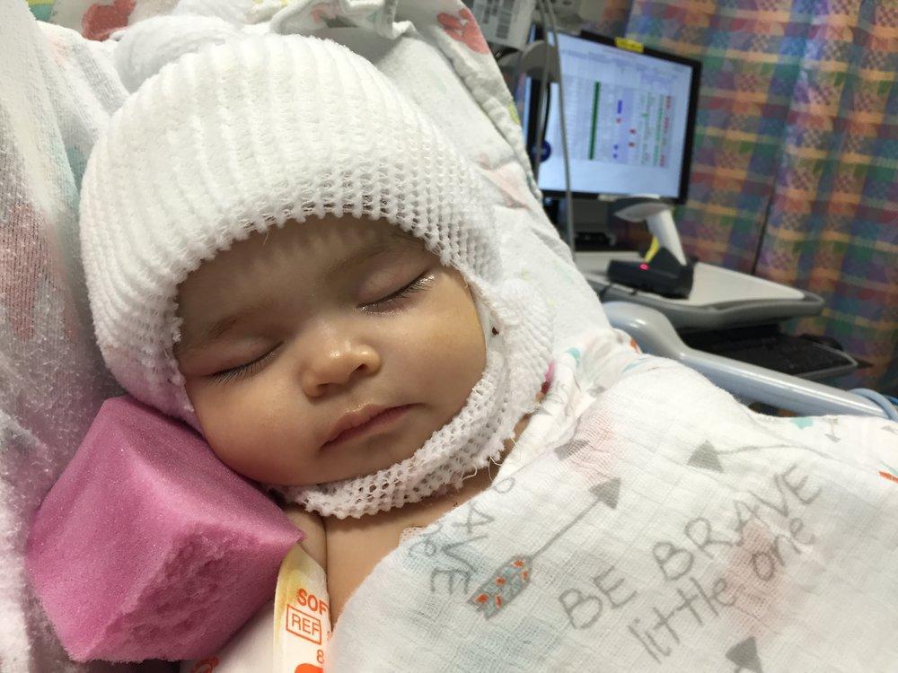 Craniosynostosis Craniofacial Baby Surgery